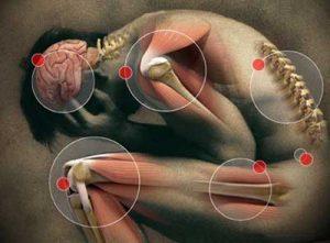 Una quantità eccessiva di acido lattico può causare dolori muscolari