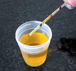 Albumina nelle urine