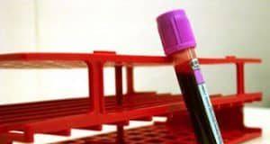 PSA esame sangue