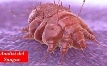 Scabbia