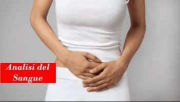 è la prostatite rilevata dallanalisi delle urine