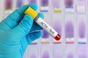 que provoca acido urico alto tratamiento para calculo renal de acido urico verduras contraindicadas para el acido urico