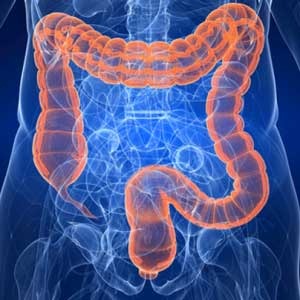 Diverticoli-intestino
