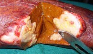 fegato-tumore