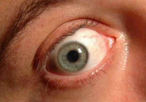 glaucoma occhio