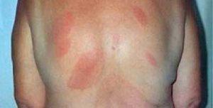 malattia-di-lyme-rossore-2