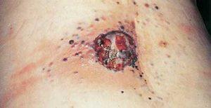 Melanoma nodulare