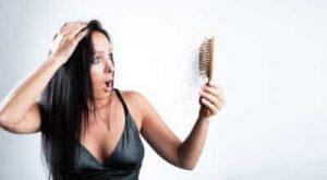 alopecia donne