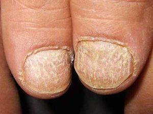 alopecia unghie
