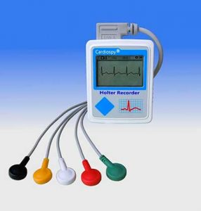 extrasistole holter