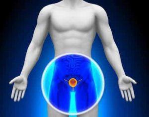 prostatite prostata