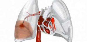 embolia polmonare cause