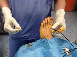 neuroma di morton chirurgia