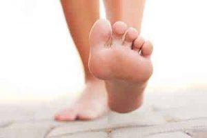 neuroma di morton piede