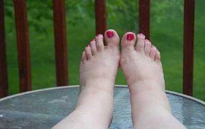 piedi gonfi cause