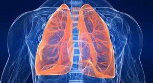 polmonite polmoni
