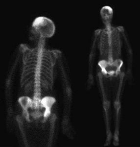 scintigrafia ossea scheletro