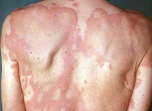 amoxicillina orticaria