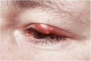 blefarite occhio