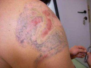tatuaggi cancellati