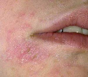 advantan dermatite