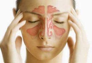 levofloxacina sinusite