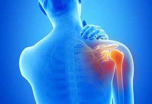 Medrol artrosi