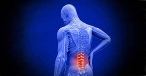 mal di schiena terapia