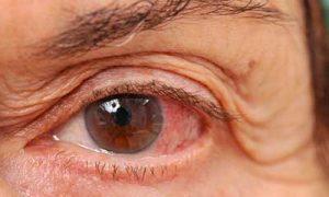 clenil glaucoma