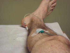 Elettromiografia ago
