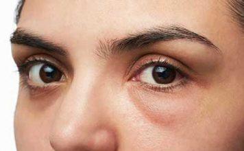 borse sotto gli occhi